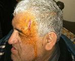 La CTA Autónoma repudia el ataque de patotas a la organización de los trabajadores