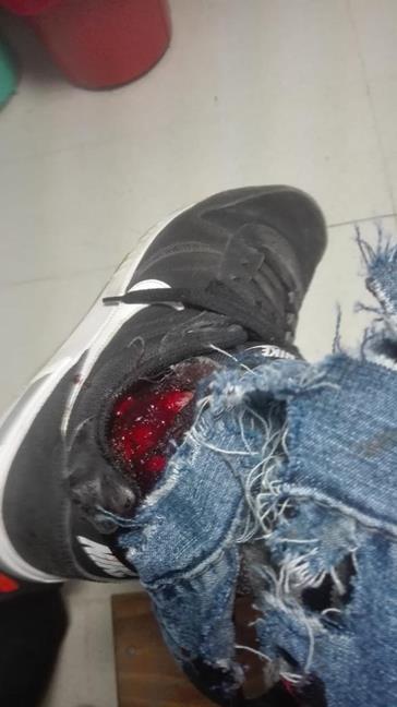 Herida por balas pol...