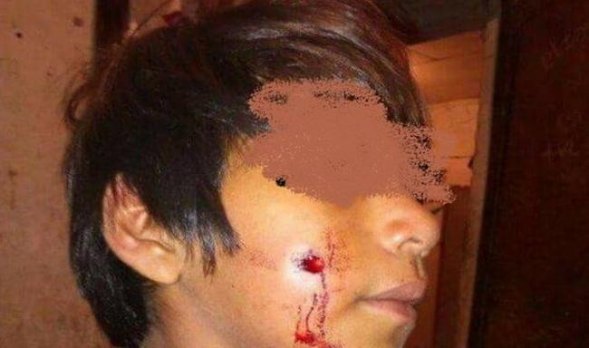 Formosa: brutal repr...